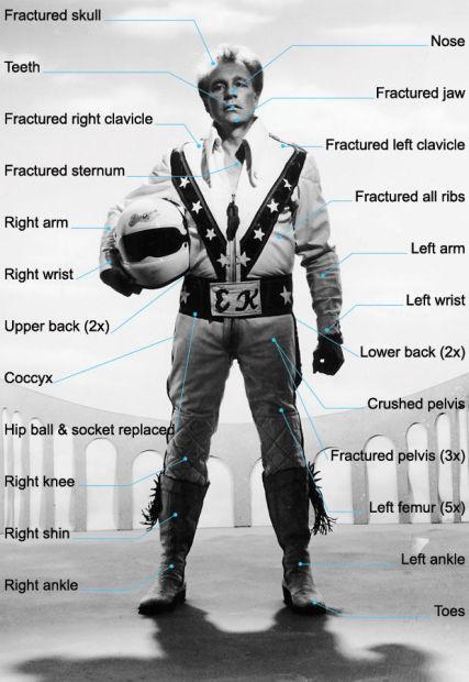 Evel Knievel Injuries.jpg