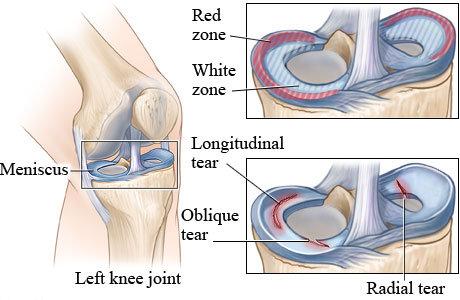 knee meniscus teear zones.jpg